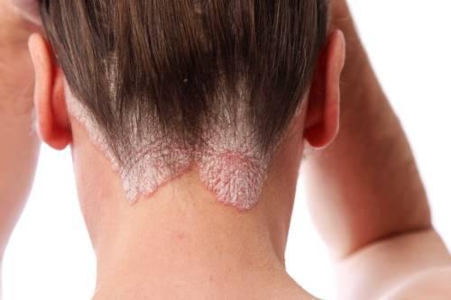 Как вылечить псориаз на голове